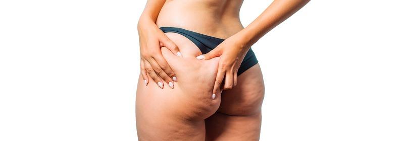 Eliminar la celulitis del culo de forma permanente