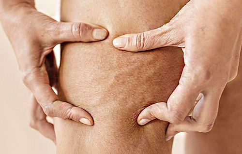 Elimina la celulitis según su tipo